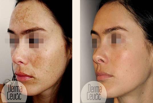 peau grasse acnéique traitement jambon